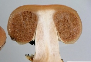 The chambered gleba or spore forming tissue of a Thaxterogaster